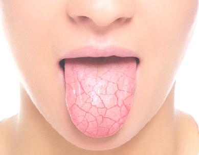Droge mond