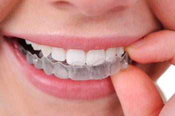 Ortodonthie02